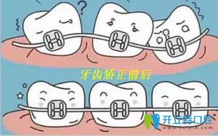 青岛元美口腔正畸专家常书楼揭晓牙齿矫正的误区有哪些