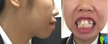 青岛元美口腔牙齿正畸案例前后对比图堪比整容效果图