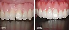 牙齿美容冠案例来啦,自白嘉兴曙光赵艳给我做牙齿修复感受