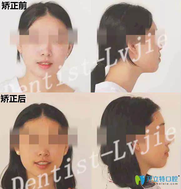 北京圣贝口腔28岁顾客牙齿矫正案例 来看正畸前后对比照片