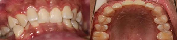 请看我在福州登特口腔金属托槽牙齿矫正14个月的恢复过程
