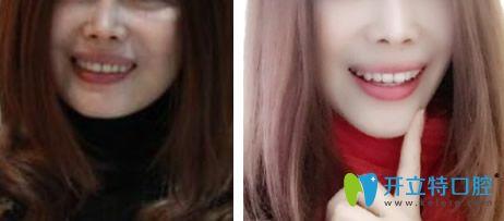 从重庆乐乐欣段斌牙齿矫正案例来看牙齿正畸对脸型的影响