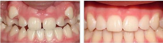 青岛维乐口腔龅牙矫正案例告诉您 26岁矫正牙齿到底晚不晚