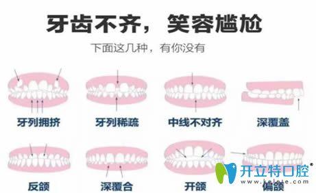 深圳慈恩齿科26岁顾客牙齿不齐矫正案例效果图赏析