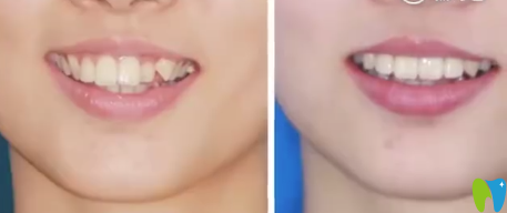 通过牙齿正畸案例来看深圳慈恩齿科陈江山矫正牙齿如何