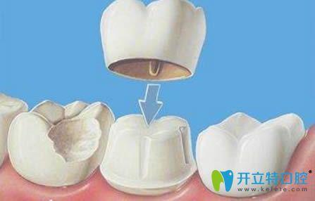提供烤瓷牙套价格表以及全烤瓷牙套能用多久的详细解答