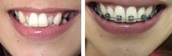 看我在成都君臣口腔 带牙套矫正牙齿186天后有了怎样的变化