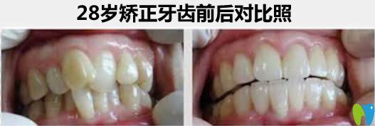 杭州瑞尔口腔谢迎医生给28岁顾客矫正牙齿前后对比照