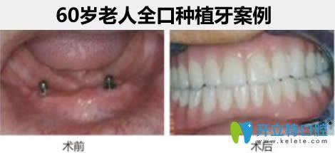 杭州瑞尔齿科刘海鑫医生60岁老人全口种植牙案例