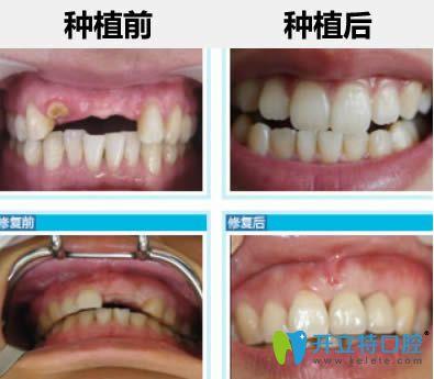 杭州瑞尔齿科刘海鑫医生半口种植牙前后对比案例
