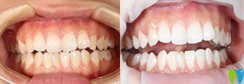 重庆牙科哪里好?看完美维口腔真人案例+价格表你还不心动