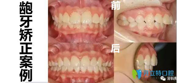 广州致美口腔龅牙矫正后对比图