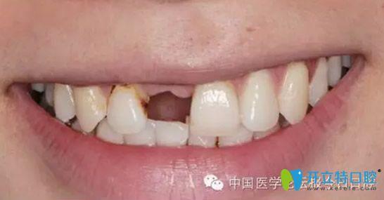 门牙缺失修复真人案例,说说我在西安雅至口腔种植牙的感受