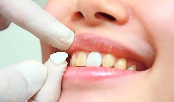 牙齿黄怎么办 我们都想知道美白牙齿的方法及价格要多少钱