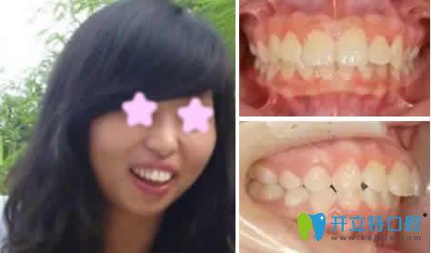 龅牙妹在昆明尚爱韩美口腔做牙齿矫正一年后红遍朋友圈