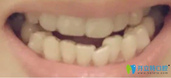 写一篇我去上海华美花4万元让张群做隐适美牙齿矫正的感受