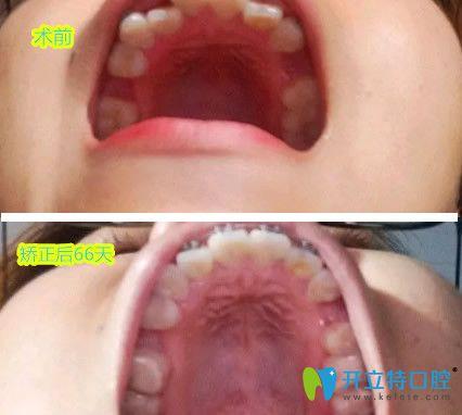 牙齿拥挤不齐在兰州康美齿科做矫正 戴牙套两个月变化喜人