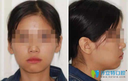 凸嘴矫正 看我在上海贝德口腔做隐形矫正牙齿1~12月变化图