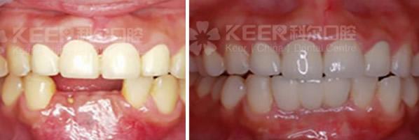 多颗牙缺失的她在福州科尔口腔修复后说 种植牙就像谈恋爱