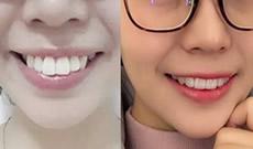 龅牙做隐形矫正效果好吗?看我在武汉存济口腔戴牙套变化图