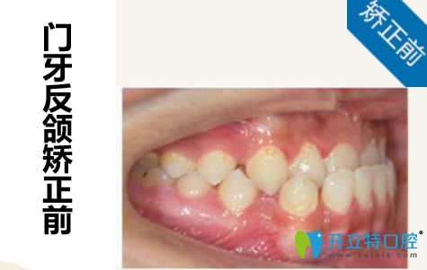 说下我去南宁柏乐口腔做隐形牙齿矫正的感触及心得