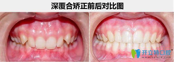儿童口腔扩弓会影响脸型吗