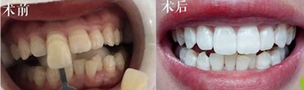冷光美白对牙齿有危害吗?关于为什么牙齿会变黄的小知识