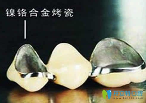 网上说镍铬烤瓷牙会致癌是真的吗?揭秘镍铬烤瓷牙的危害