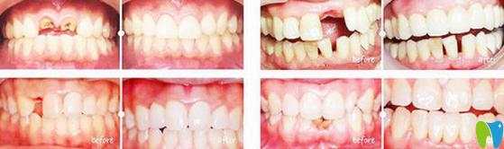 福州贝臣齿科好不好?贝臣口腔种牙真人案例效果来验证