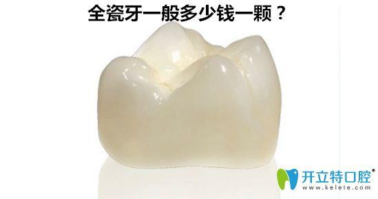 全瓷牙一般多少钱一颗?600元的全瓷牙好吗?