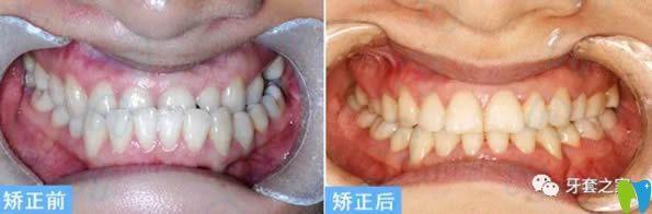杭州齐尔口腔李诗佩地包天牙齿矫正案例及前后对比照