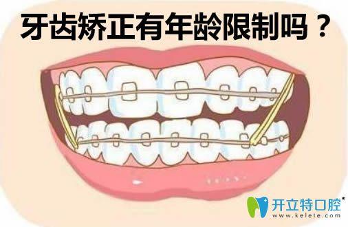 李教授解析牙齿矫正有年龄限制吗