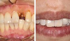 缺一颗门牙怎么办?我找福州贝臣口腔罗维明做了即刻种植牙