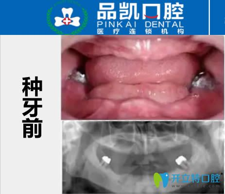 爆出杭州品凯口腔的全口allon4种植牙案例及顾客术后评价