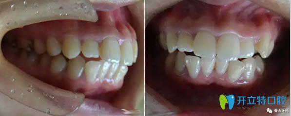 我得知时代天使和隐适美的区别后去长沙齿邦做了龅牙矫正