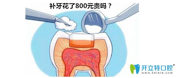 杭州口腔医院补牙800元贵不贵?求2018杭州补牙价格表