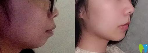 用我在长沙科尔雅脸型变化图来验证骨性龅牙矫正有效果吗
