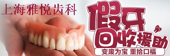 上海雅悦口腔11月11日看牙优惠价格疯抢中牙齿矫正直降5000元