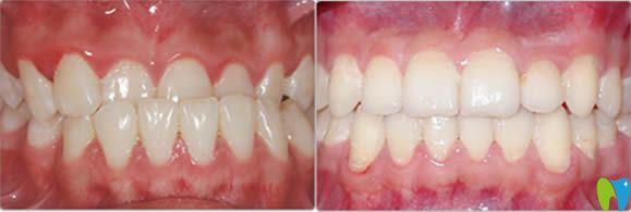 28岁矫正牙齿前后对比照