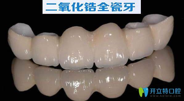 公布二氧化锆全瓷牙价格表 看完就知道全瓷牙套多少钱一颗
