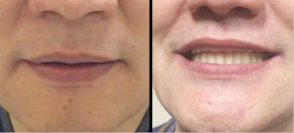 北京瑞康口腔井战备擅长牙齿种植还是正畸 整牙效果怎么样