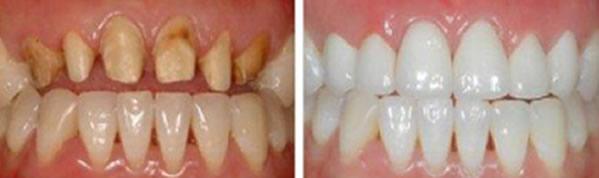 牙齿缺损掉落什么原因 成都皓雅口腔揭晓牙齿缺损修复方法