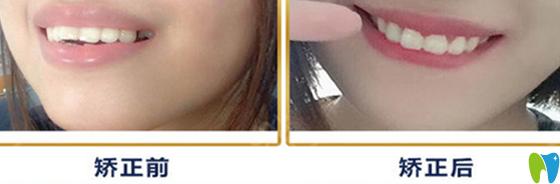 重庆牙卫士口腔真人龅牙矫正案例前后效果对比图