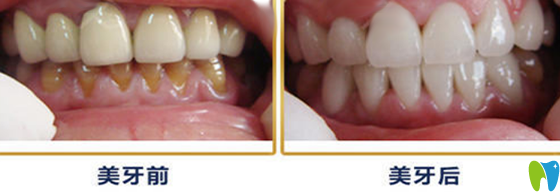 3D瓷贴面牙齿修复术前术后对比案例