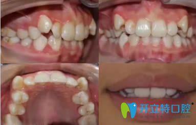 我在宁波壹加壹口腔找茅来发主任做牙齿正畸的体验分享