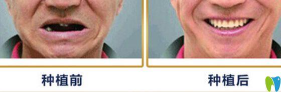 重庆种植牙_重庆牙卫士口腔医院怎么样_地址_电话_医生团队_案例_口碑评价 ...