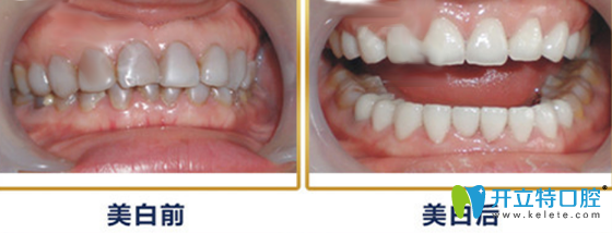 牙卫士口腔班氟斑牙治疗案例前后效果对比