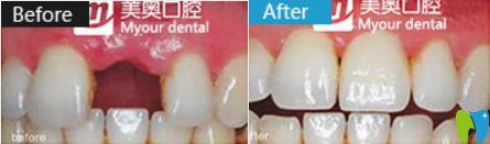 宁波美奥口腔真人补牙+种植牙案例