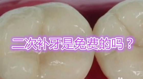 补牙材料掉了怎么办还能免费补码 材料脱落后再补牙疼不疼