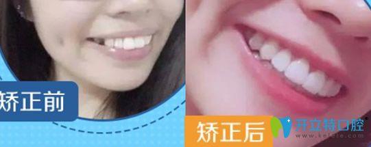 泉州牙博士口腔好吗?透露牙博士口腔种植牙/正畸案例及价格